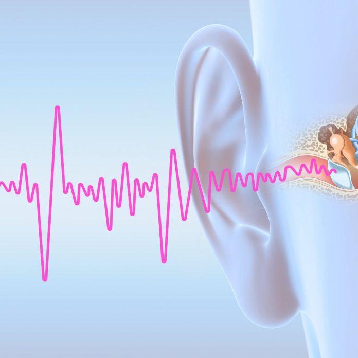 面对耳鸣,我的作息时间和工作习惯也有所调整 - file 20190925 51463 1hfsvb7